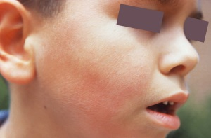Fifth disease can cause a child to look like they have slapped cheeks.